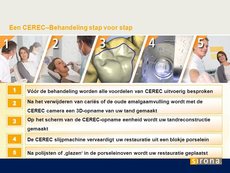 Een CEREC–Behandeling stap voor stap
