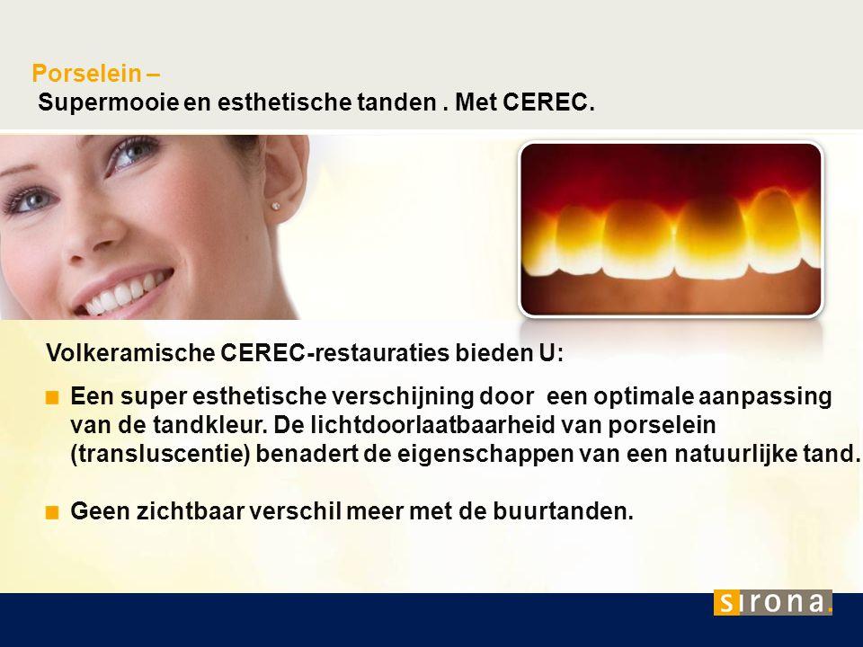 Supermooie en esthetische tanden . Met CEREC.