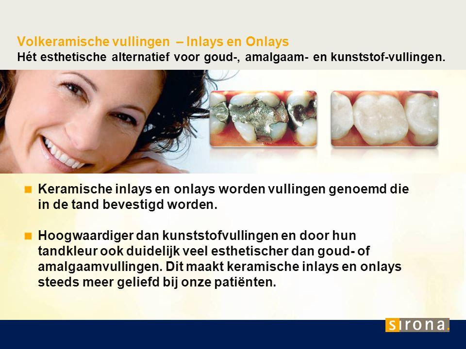Volkeramische vullingen – Inlays en Onlays Hét esthetische alternatief voor goud-, amalgaam- en kunststof-vullingen.