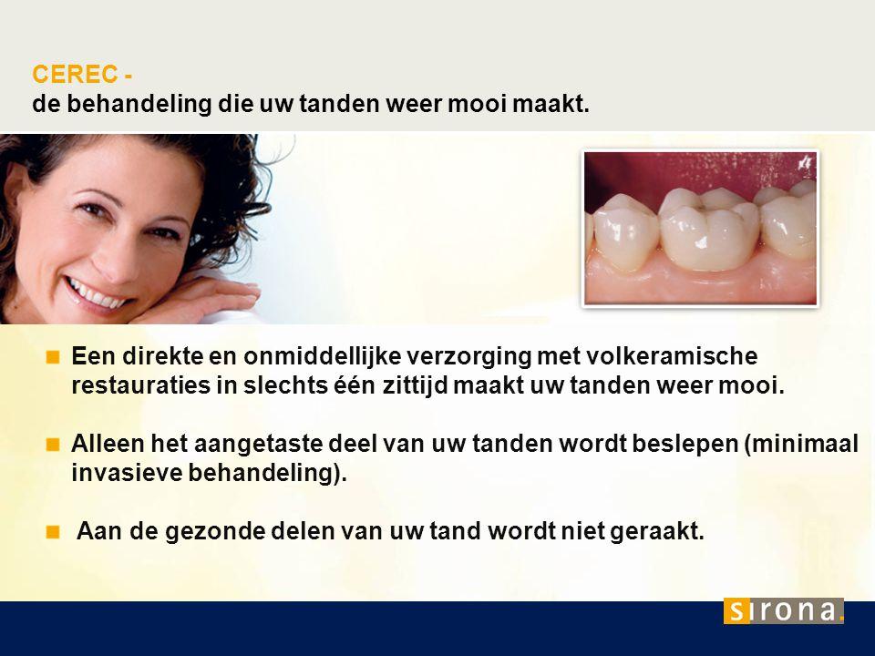 de behandeling die uw tanden weer mooi maakt.