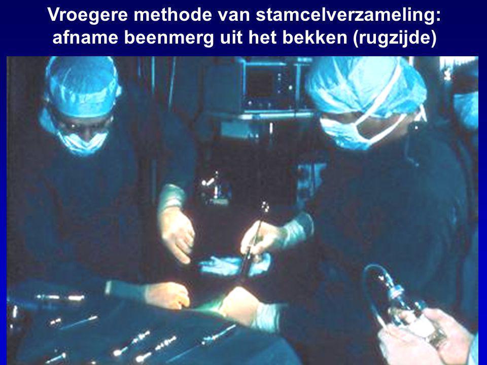 Vroegere methode van stamcelverzameling: