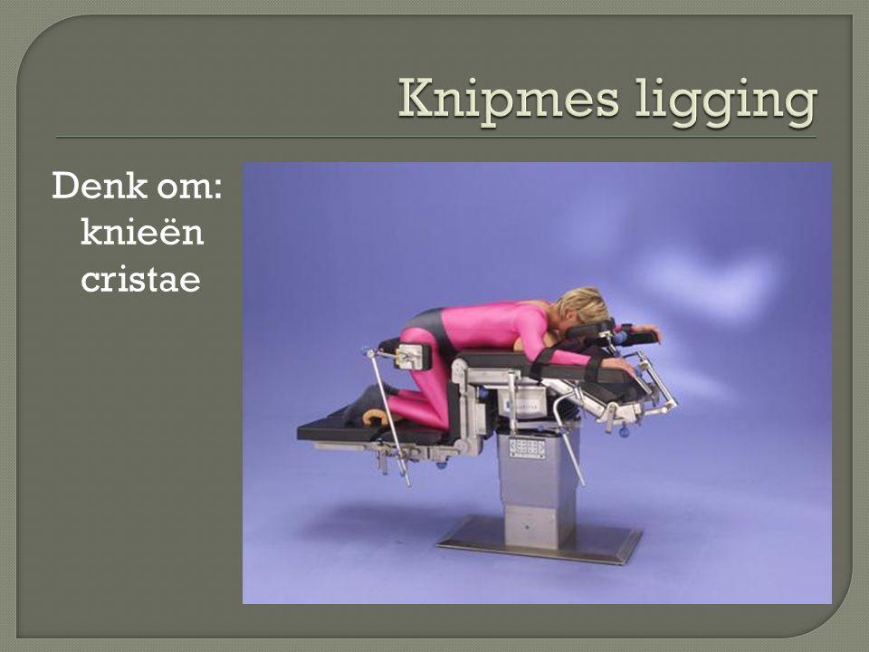 Knipmes ligging Denk om: knieën cristae