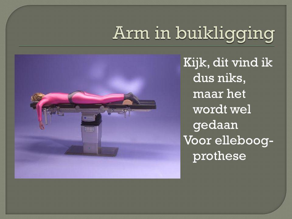 Arm in buikligging Kijk, dit vind ik dus niks, maar het wordt wel gedaan Voor elleboog-prothese