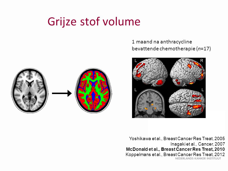 Grijze stof volume 1 maand na anthracycline bevattende chemotherapie (n=17) Yoshikawa et al., Breast Cancer Res Treat, 2005.