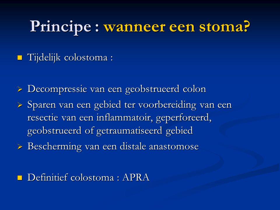 Principe : wanneer een stoma