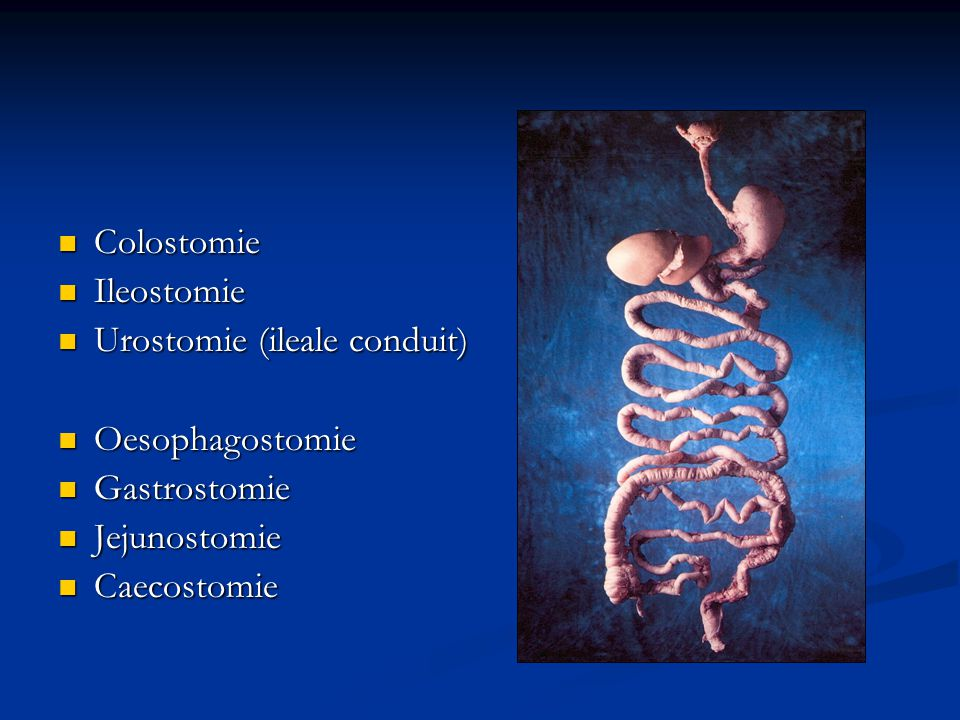 Colostomie Ileostomie. Urostomie (ileale conduit) Oesophagostomie.