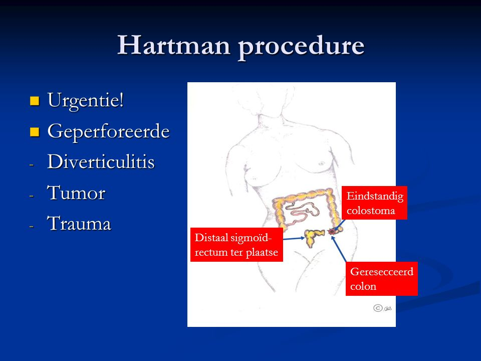 Hartman procedure Urgentie! Geperforeerde Diverticulitis Tumor Trauma
