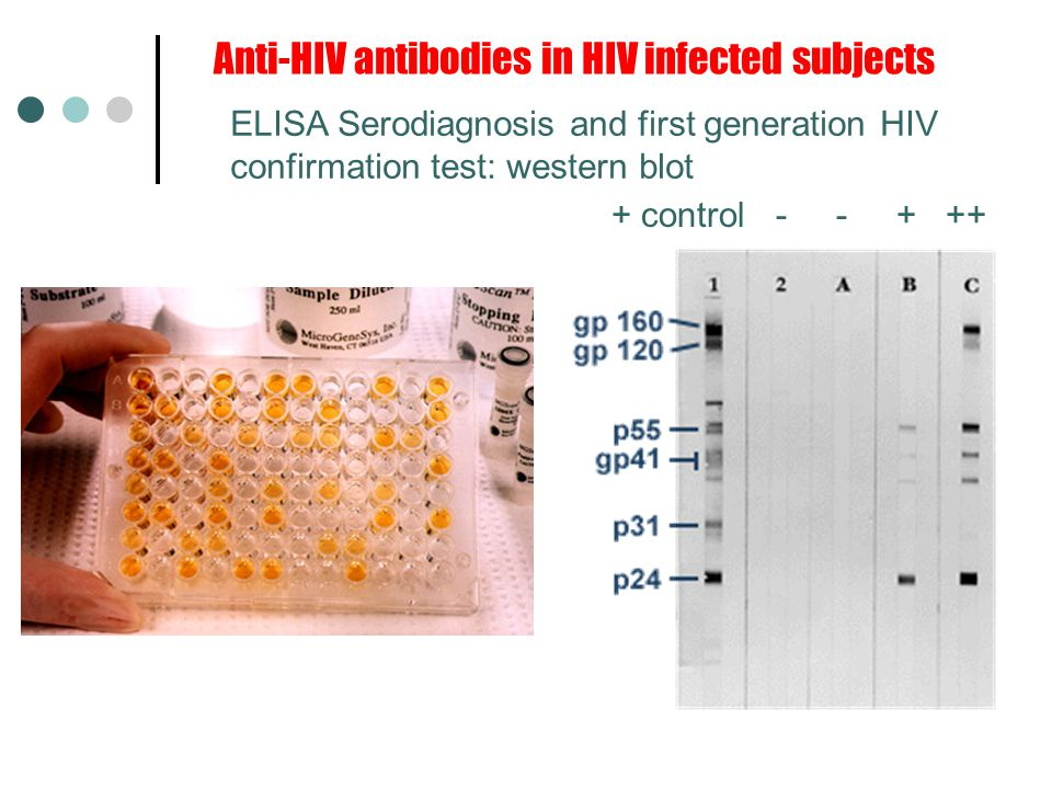 Anti-HIV antibodies in HIV infected subjects