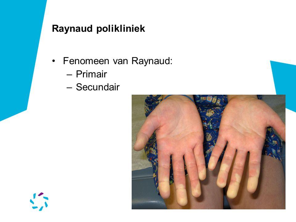 Raynaud polikliniek Fenomeen van Raynaud: Primair Secundair