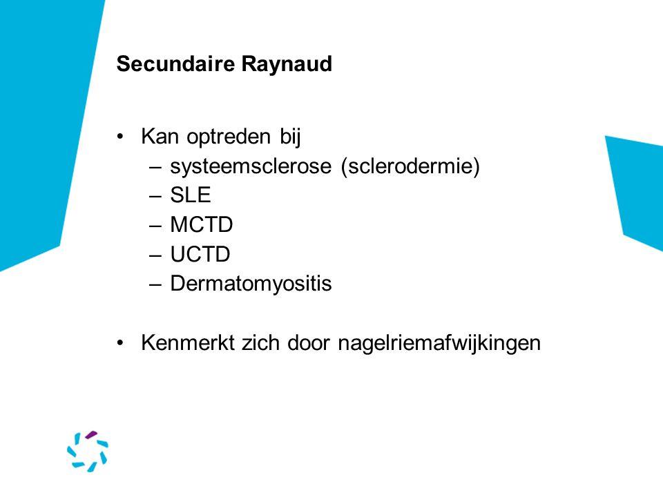Secundaire Raynaud Kan optreden bij. systeemsclerose (sclerodermie) SLE. MCTD. UCTD. Dermatomyositis.