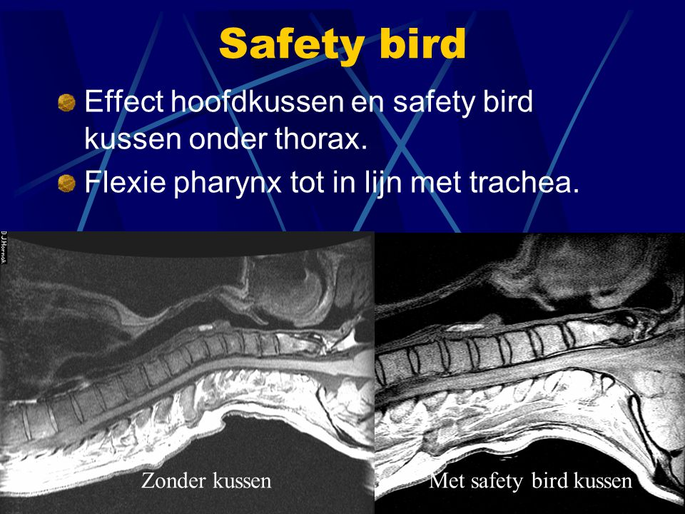 Safety bird Effect hoofdkussen en safety bird kussen onder thorax.