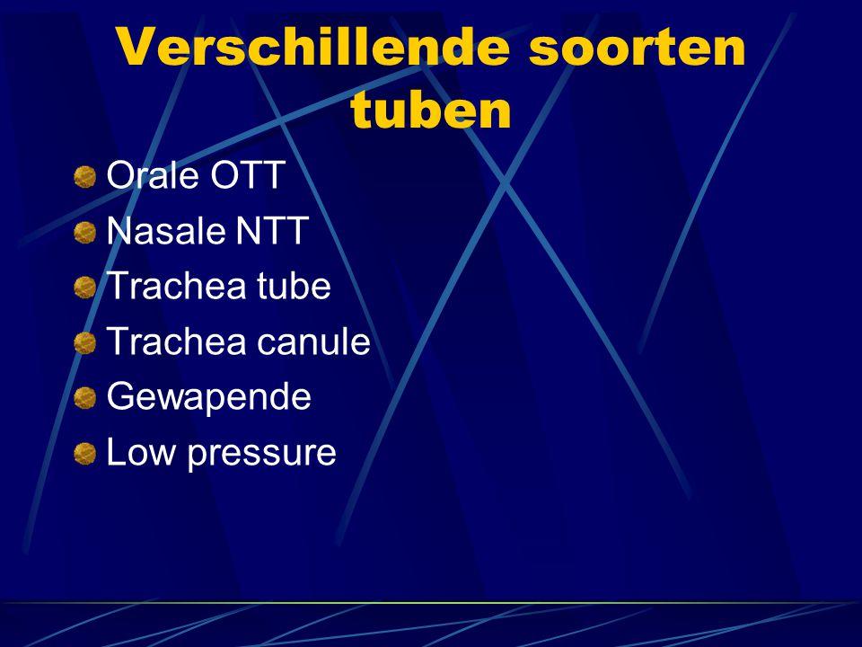 Verschillende soorten tuben
