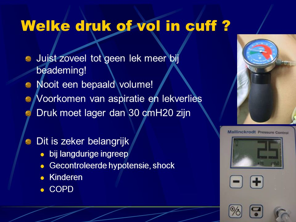 Welke druk of vol in cuff