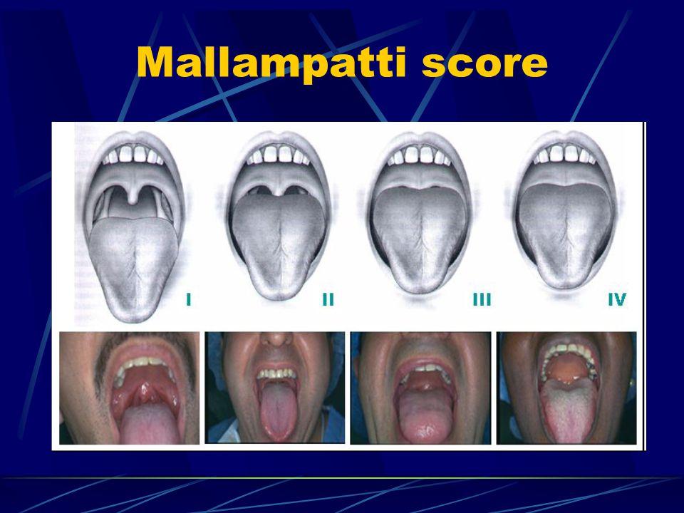 Mallampatti score