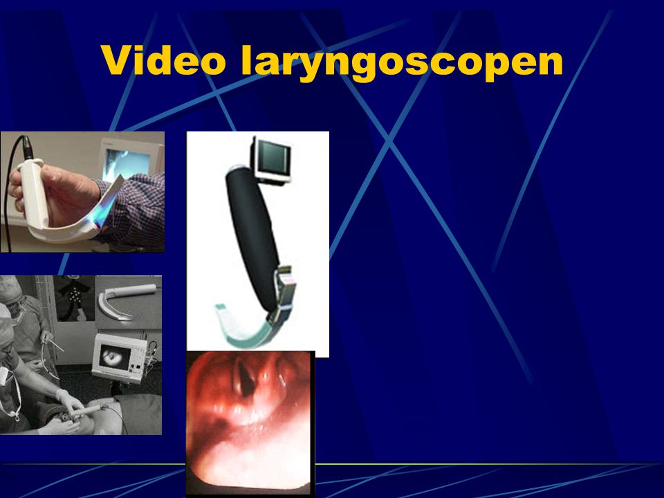 Video laryngoscopen