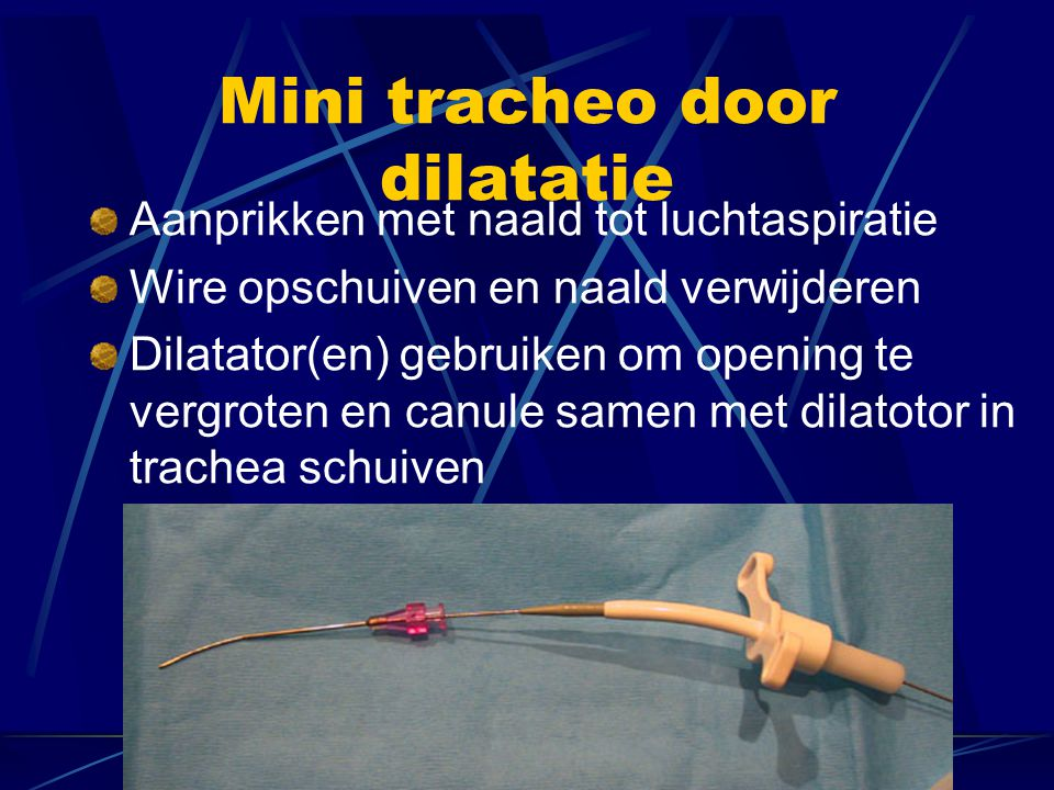 Mini tracheo door dilatatie
