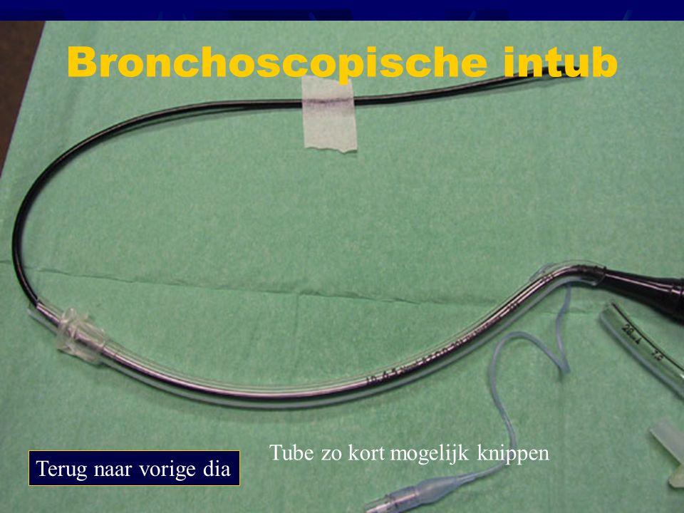 Bronchoscopische intub