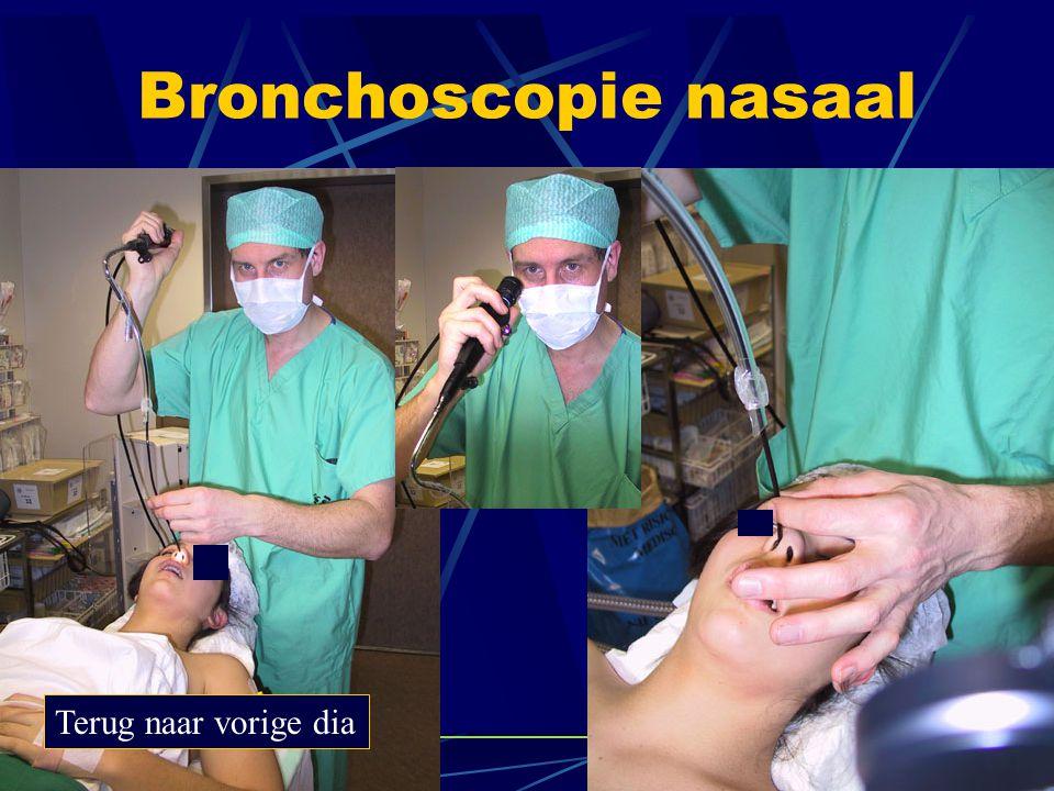 Bronchoscopie nasaal Terug naar vorige dia