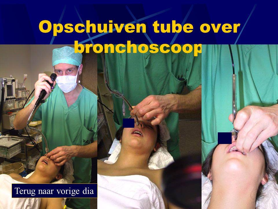 Opschuiven tube over bronchoscoop
