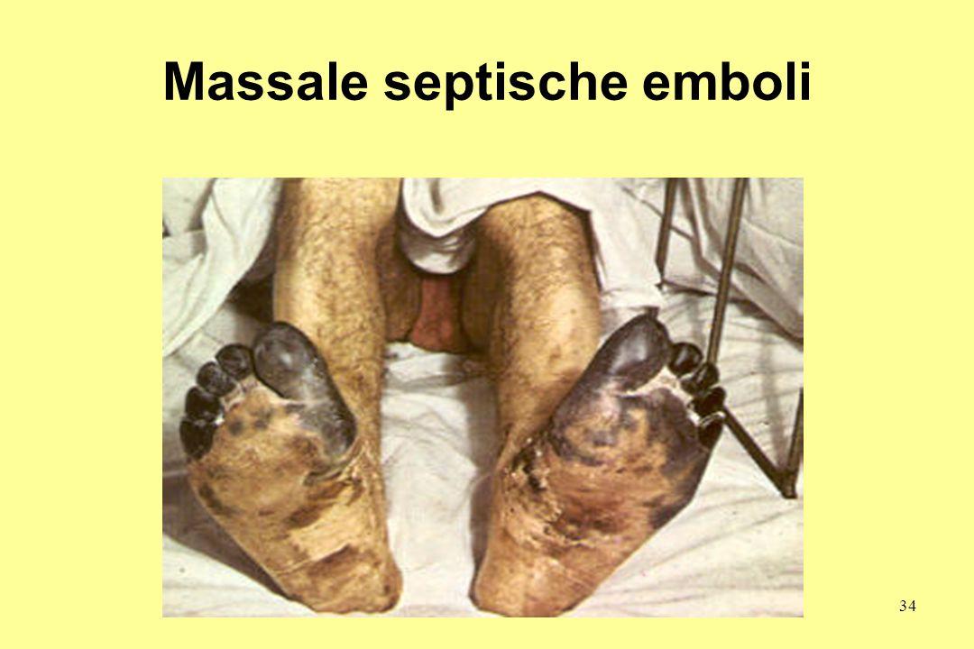 Massale septische emboli