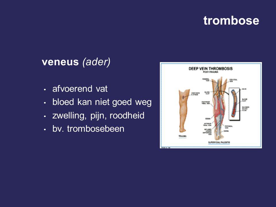 trombose veneus (ader) afvoerend vat bloed kan niet goed weg