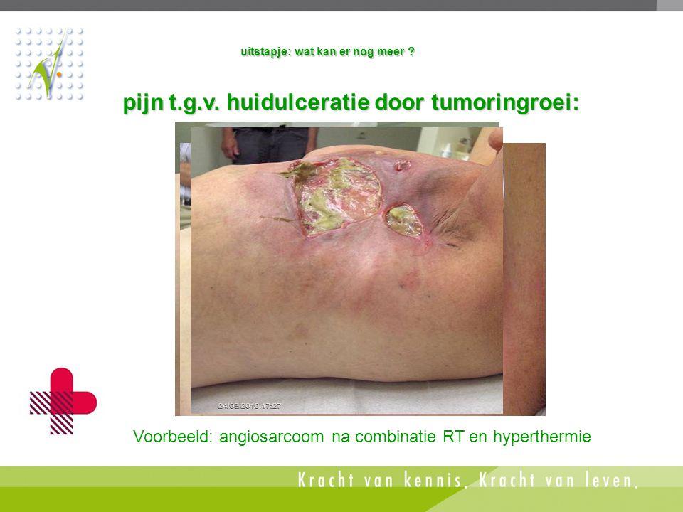 pijn t.g.v. huidulceratie door tumoringroei: