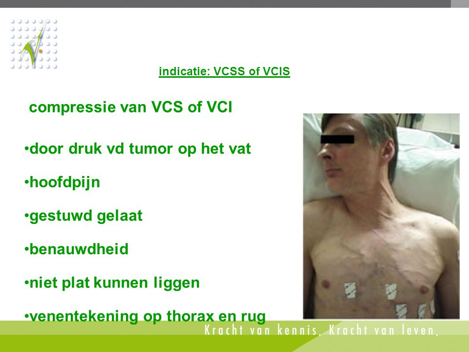 compressie van VCS of VCI