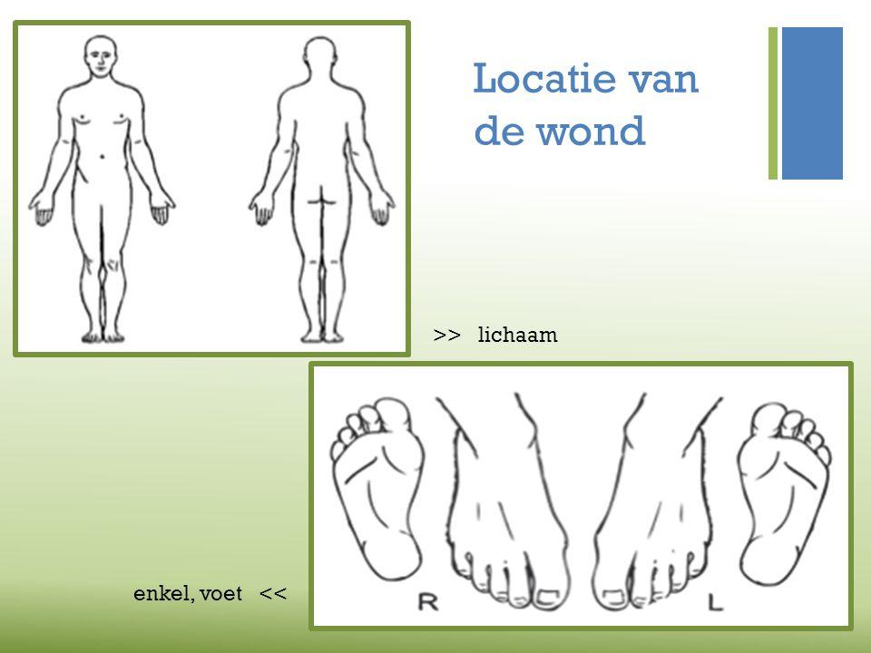 Locatie van de wond >> lichaam enkel, voet <<