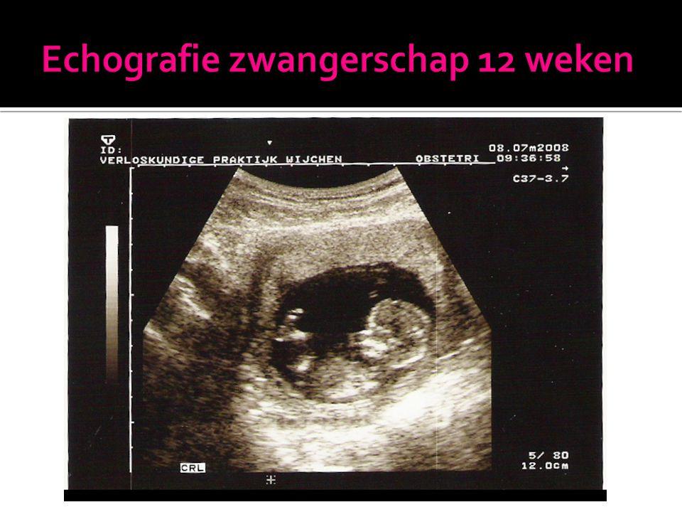 Echografie zwangerschap 12 weken