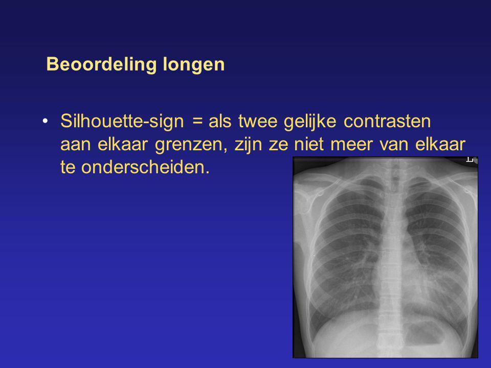 Beoordeling longen Silhouette-sign = als twee gelijke contrasten aan elkaar grenzen, zijn ze niet meer van elkaar te onderscheiden.