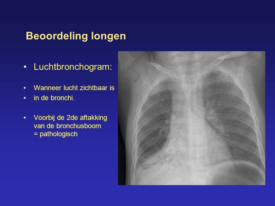 Beoordeling longen Luchtbronchogram: Wanneer lucht zichtbaar is