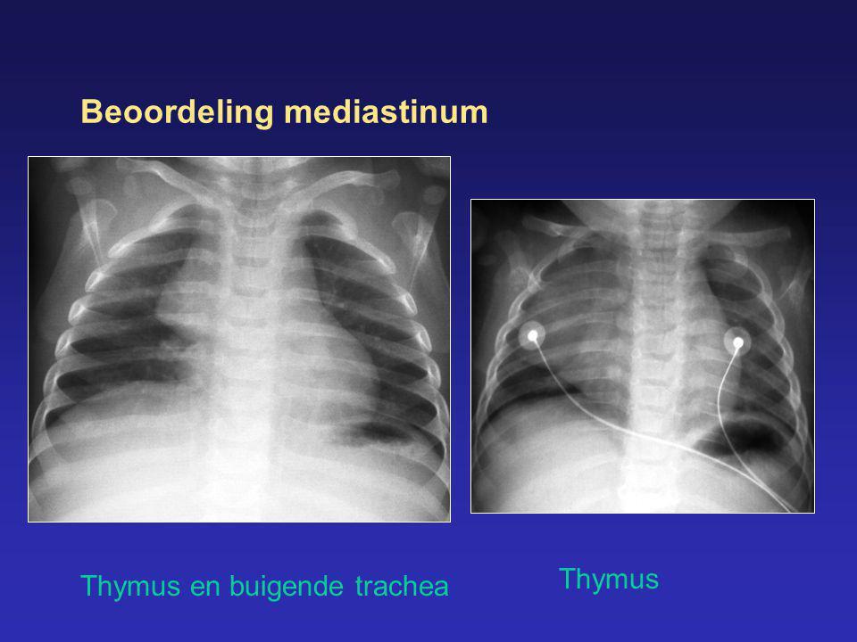 Beoordeling mediastinum