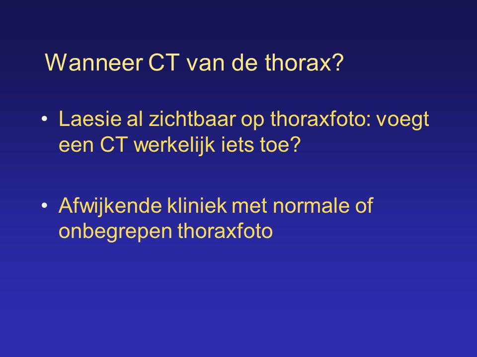 Wanneer CT van de thorax
