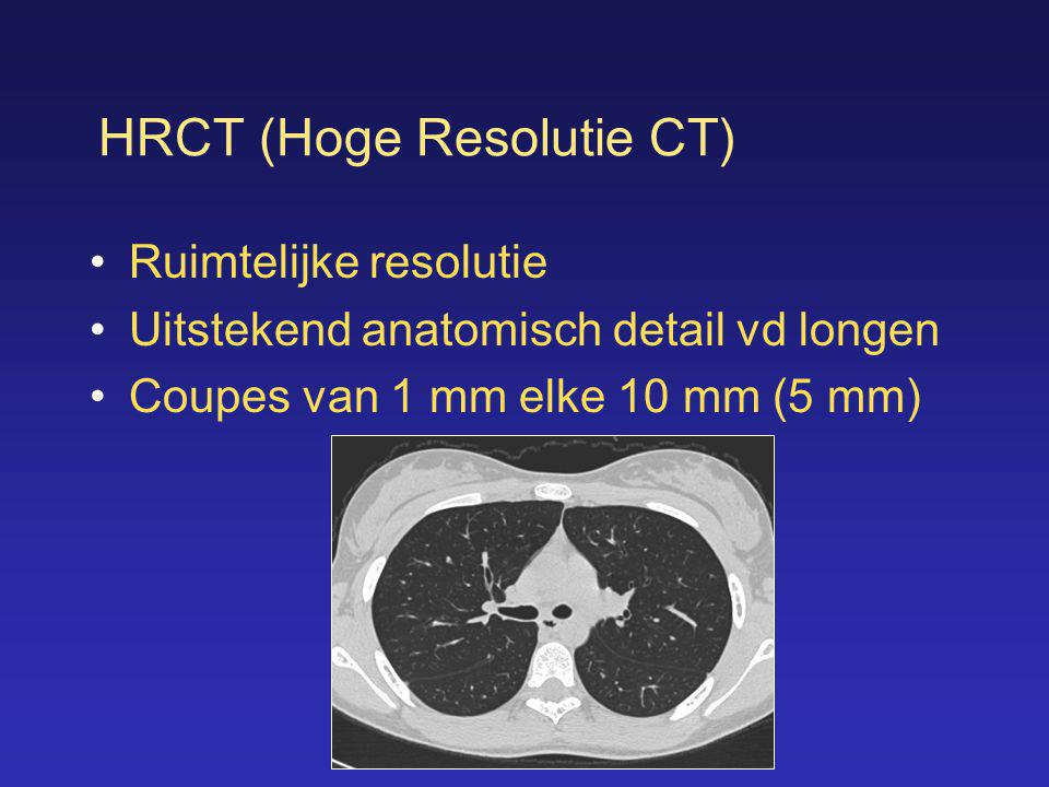 HRCT (Hoge Resolutie CT)
