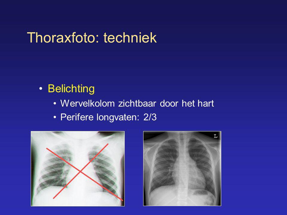 Thoraxfoto: techniek Belichting Wervelkolom zichtbaar door het hart