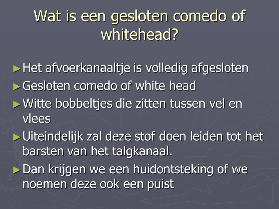 Wat is een gesloten comedo of whitehead