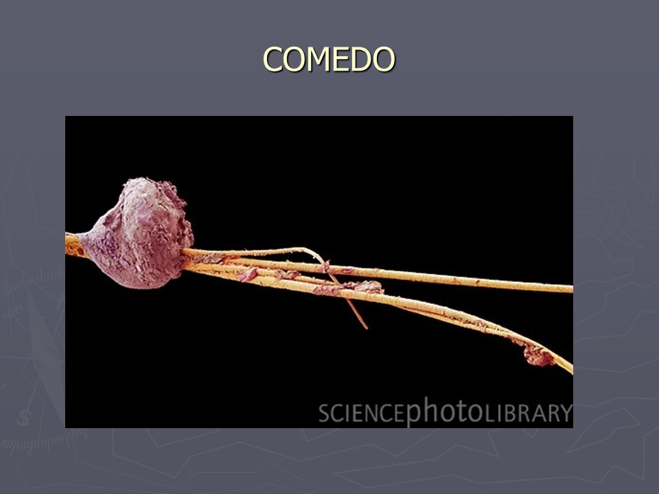 COMEDO