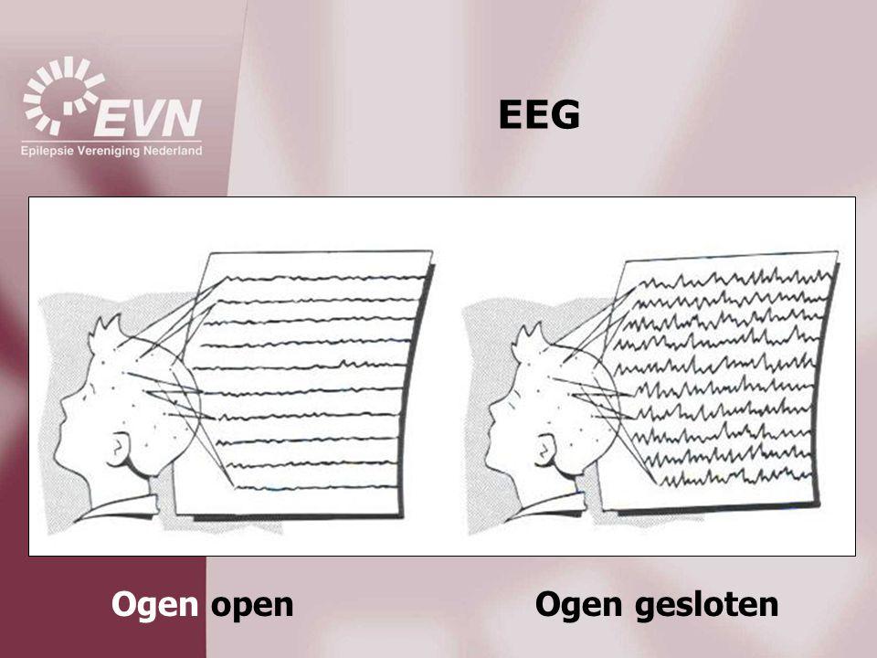 EEG Ogen open Ogen gesloten