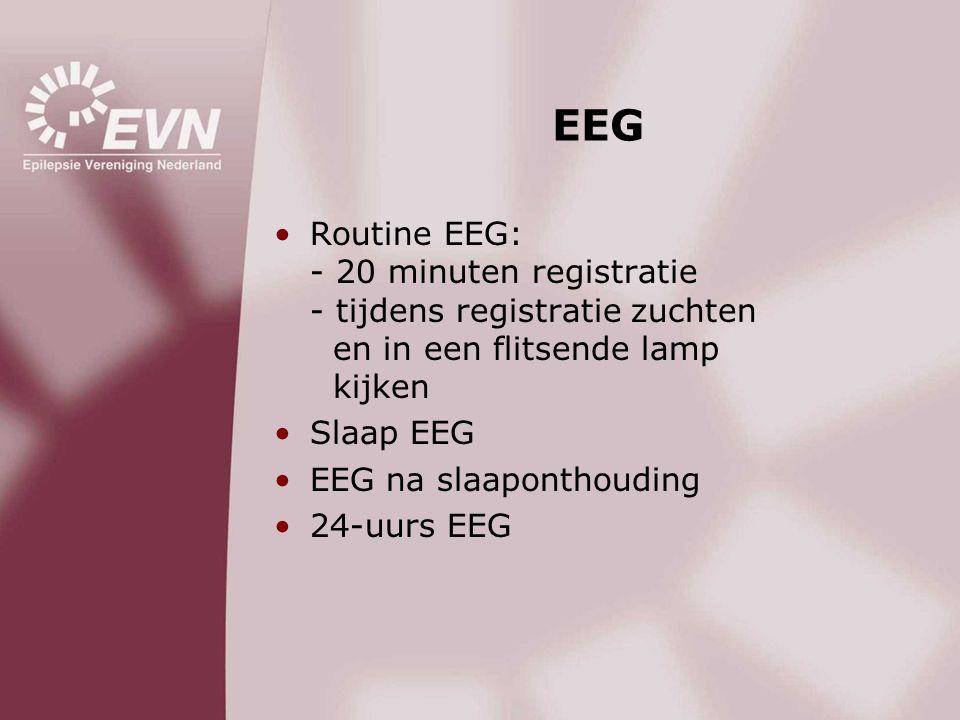 EEG Routine EEG: - 20 minuten registratie - tijdens registratie zuchten en in een flitsende lamp kijken.