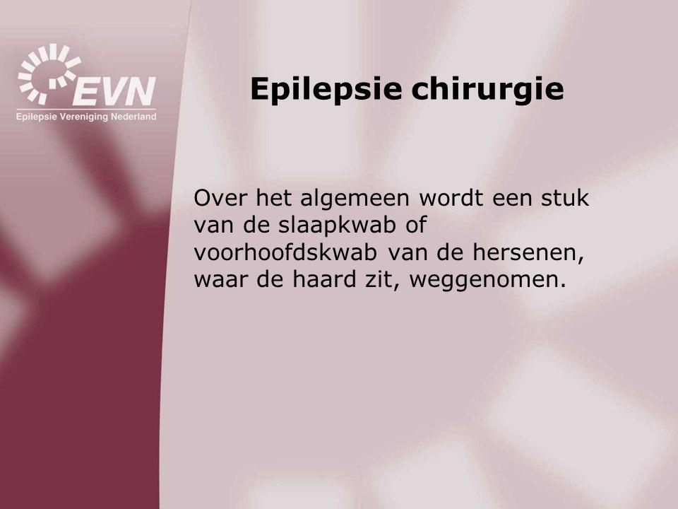 Epilepsie chirurgie Over het algemeen wordt een stuk van de slaapkwab of voorhoofdskwab van de hersenen, waar de haard zit, weggenomen.