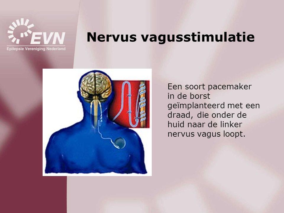 Nervus vagusstimulatie
