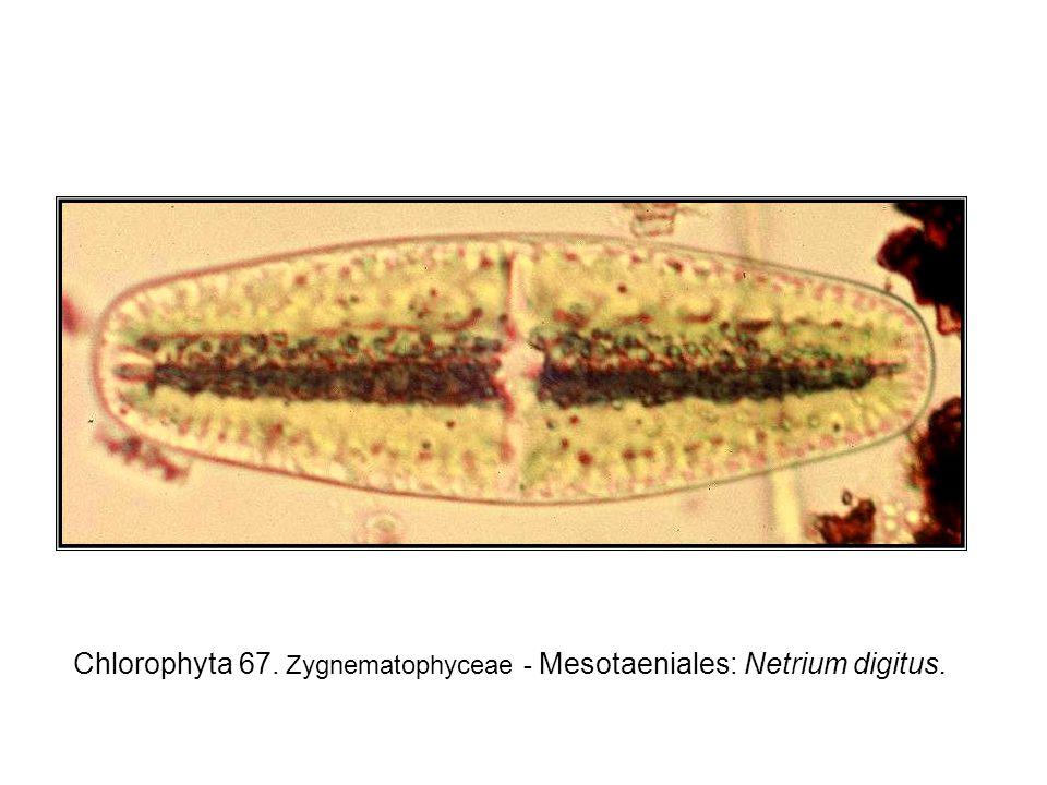 Chlorophyta 67. Zygnematophyceae - Mesotaeniales: Netrium digitus.