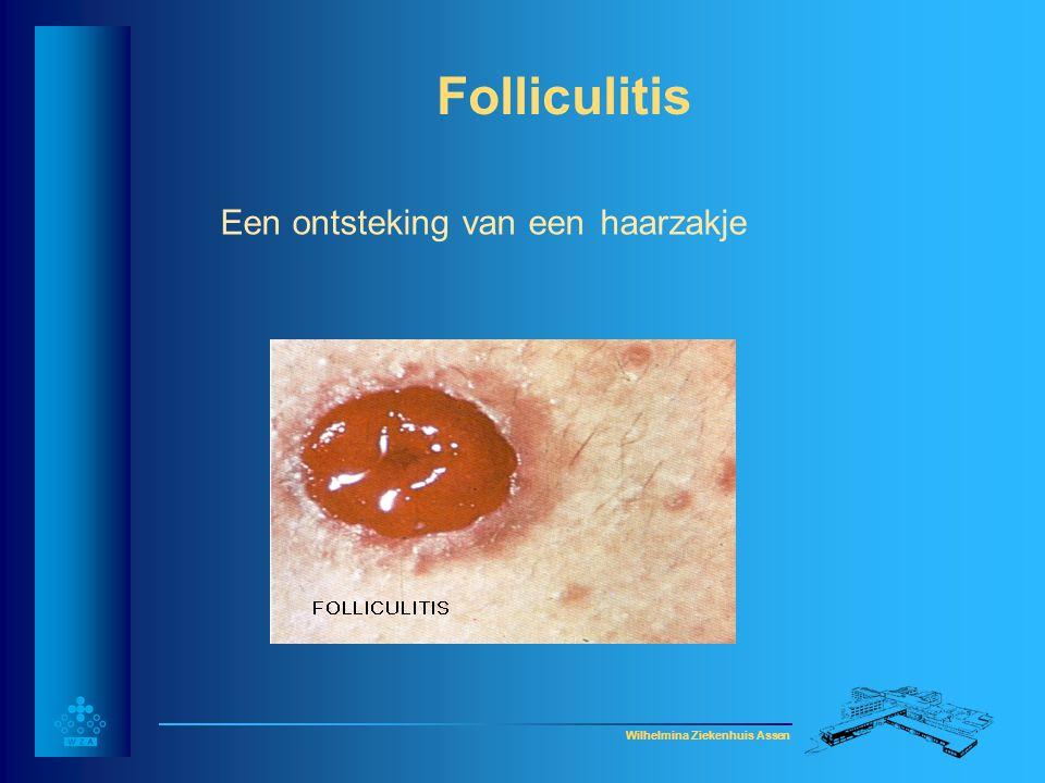 Folliculitis Een ontsteking van een haarzakje