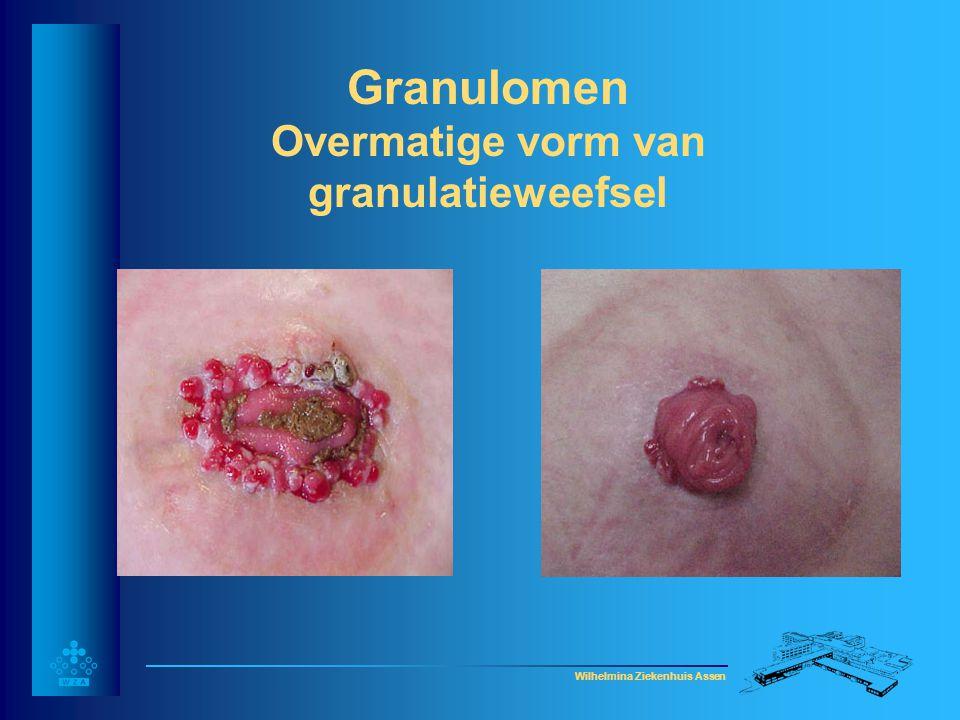 Granulomen Overmatige vorm van granulatieweefsel