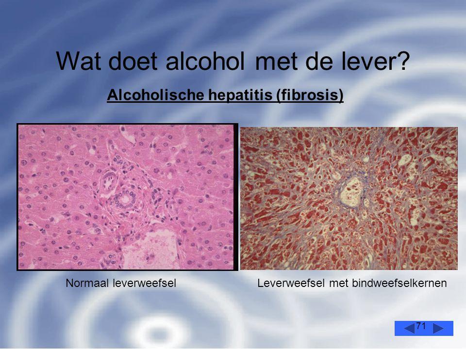 Wat doet alcohol met de lever
