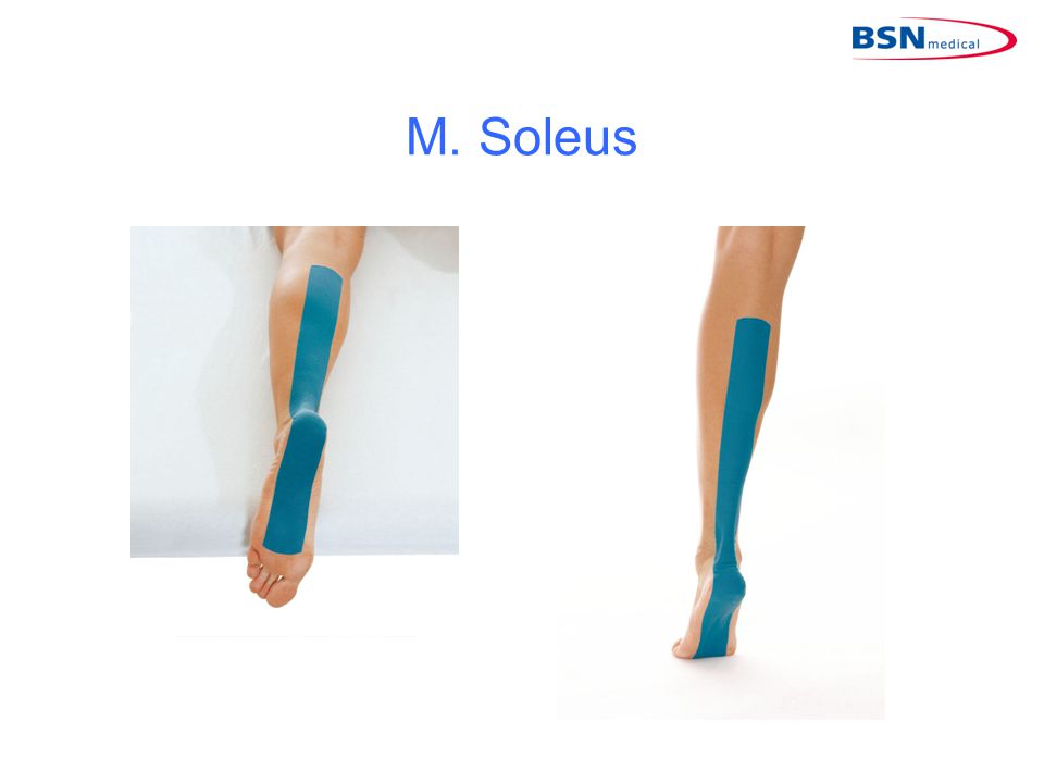M. Soleus