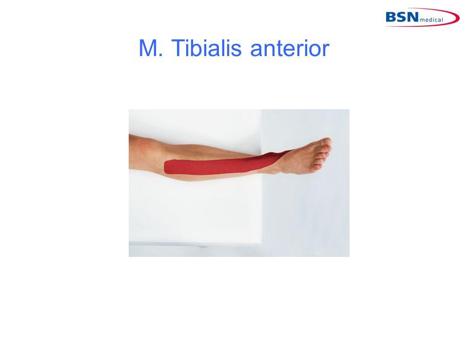 M. Tibialis anterior