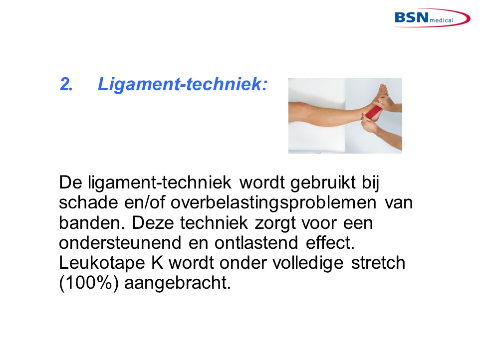 2. Ligament-techniek: