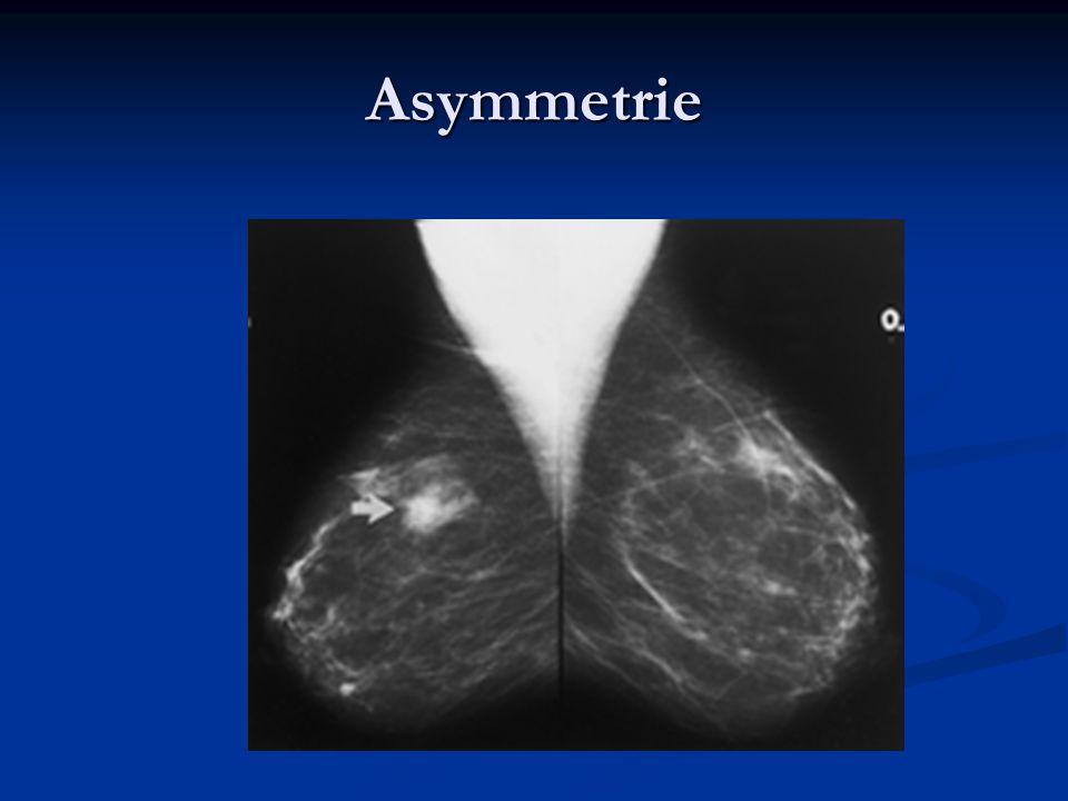 Asymmetrie 4 jaar stabiel benign fibr gla weefsel
