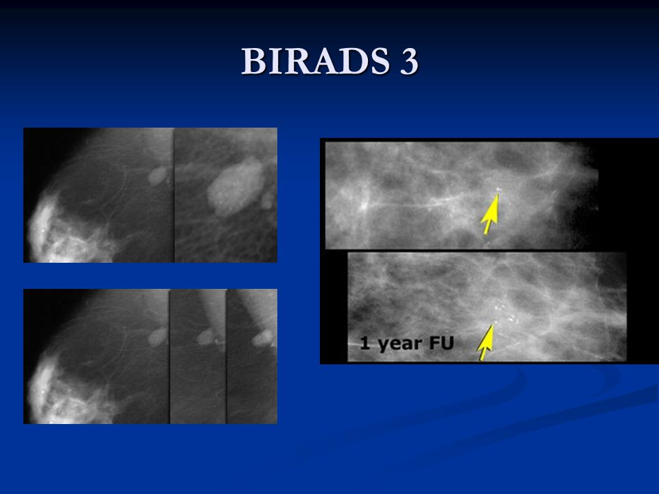 BIRADS 3